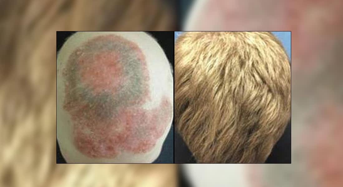 دواء جديد لعلاج المفاصل يشفي من داء الثعلبة والصلع أيضاَ