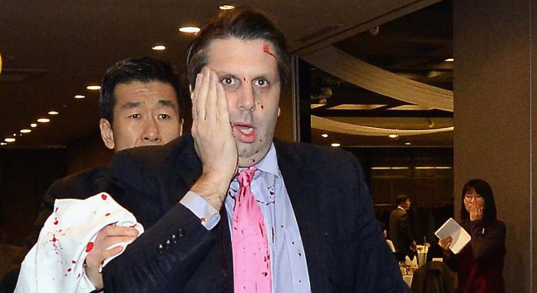 هل تقف بيونغ يانغ وراء الهجوم على السفير الأمريكي في كوريا الجنوبية؟