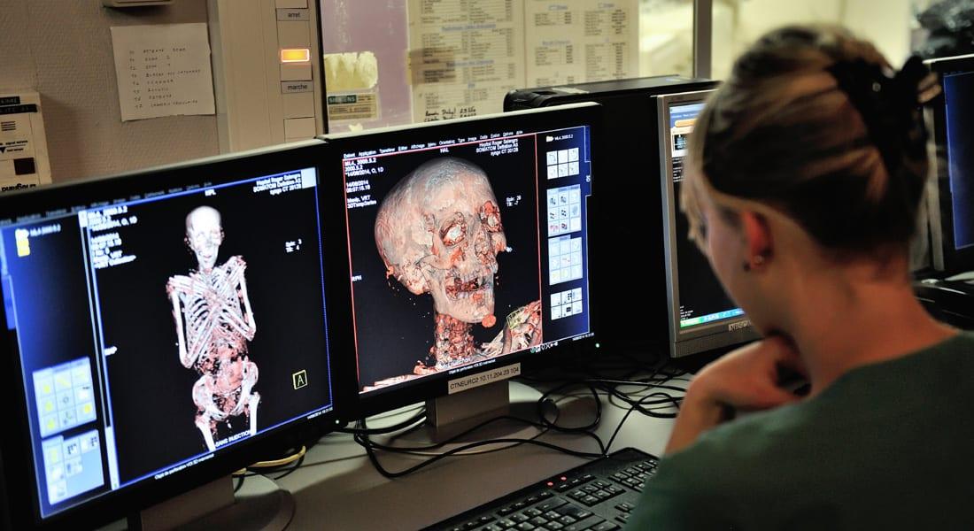 كشف طبي أثري.. أقدم حالة إصابة بسرطان الثدي لامرأة مصرية عاشت قبل 4200 سنة