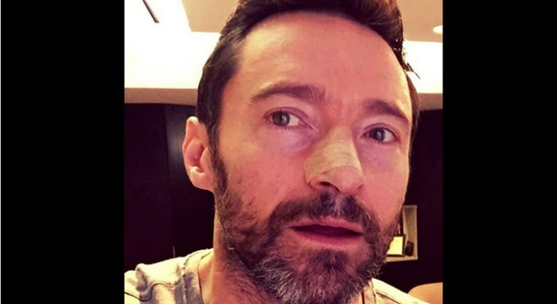 الممثل هيو جاكمان يعلن إصابته مجدداً بسرطان الجلد: استعملوا واقي الشمس!