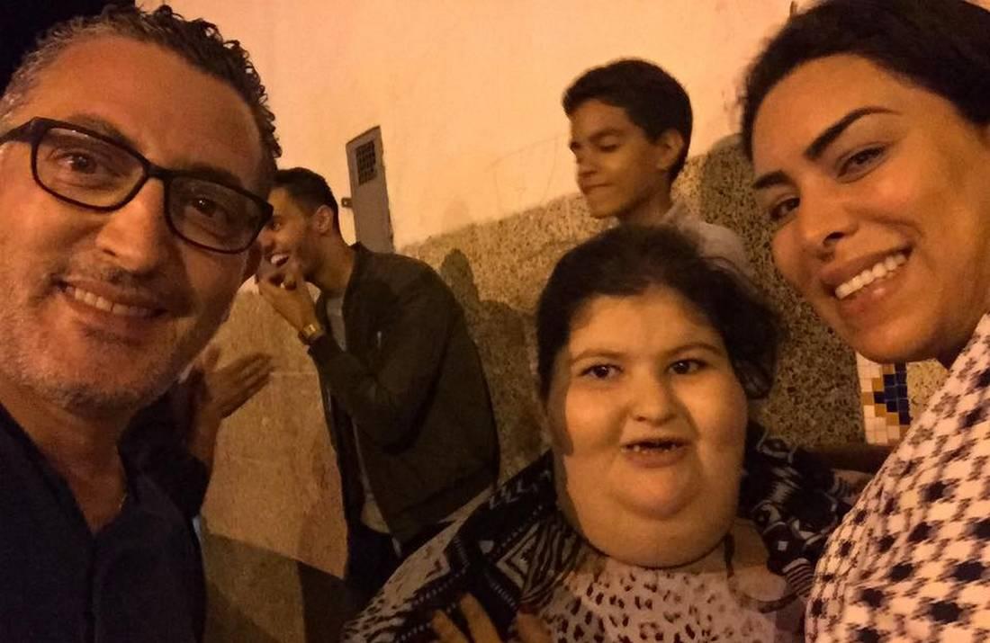 جراحون مغاربة يعرضون المساعدة على طفلة تزن مئتي كيلوغرام