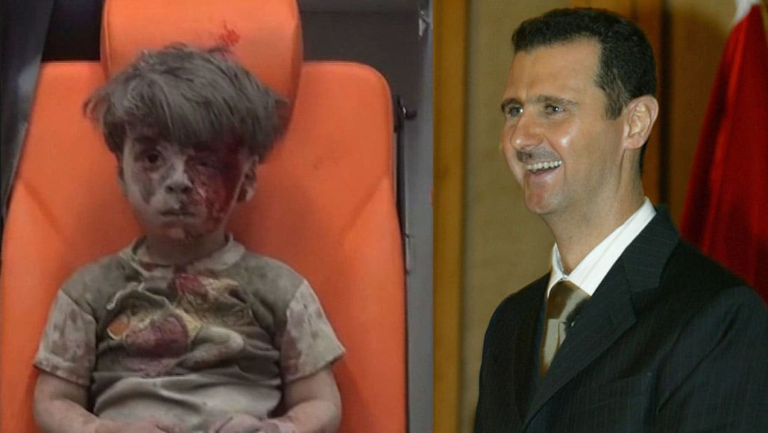 الأسد: صورة الطفل عمران ليست حقيقية