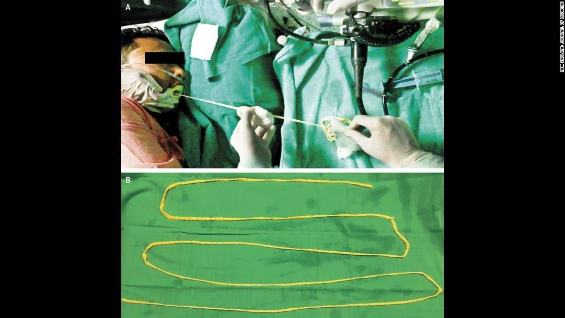 أطباء ينتزعون دودة شريطية بطول يقارب المترين من فم مريض بالهند