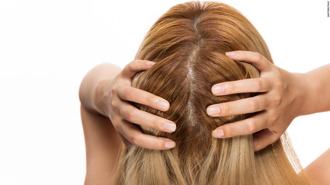 6 أسباب لتساقط الشعر عند النساء