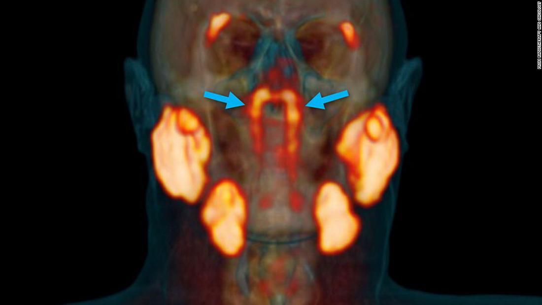 سرطان البنكرياس.. يصعب اكتشافه مبكرا وهذه عوامل الخطر المرتبطة به