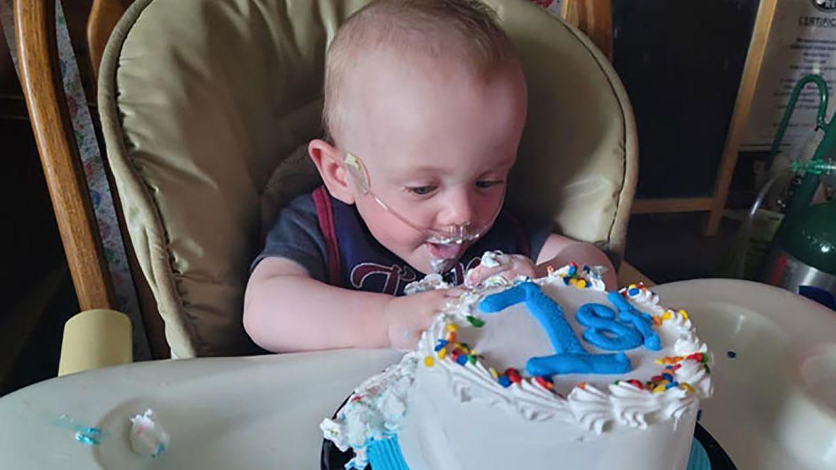 """بالفيديو.. طفل مولود دون جزء من جمجمته يكمل عامه الأول.. """"إعجاز"""" التمسك بالحياة"""