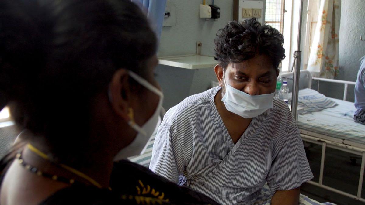 """عدوى تتغذى على اللحم الميت.. الهند تكافح ضد ارتفاع حالات """"الفطر الأسود"""" مع انخفاض معدل الإصابة بفيروس كورونا"""