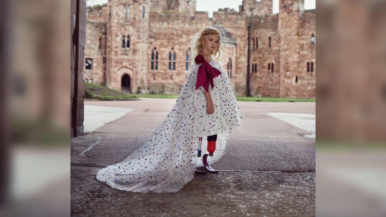 طفلة في التاسعة من العمر بترت أرجلها فتحدت واقعها على منصات الأزياء