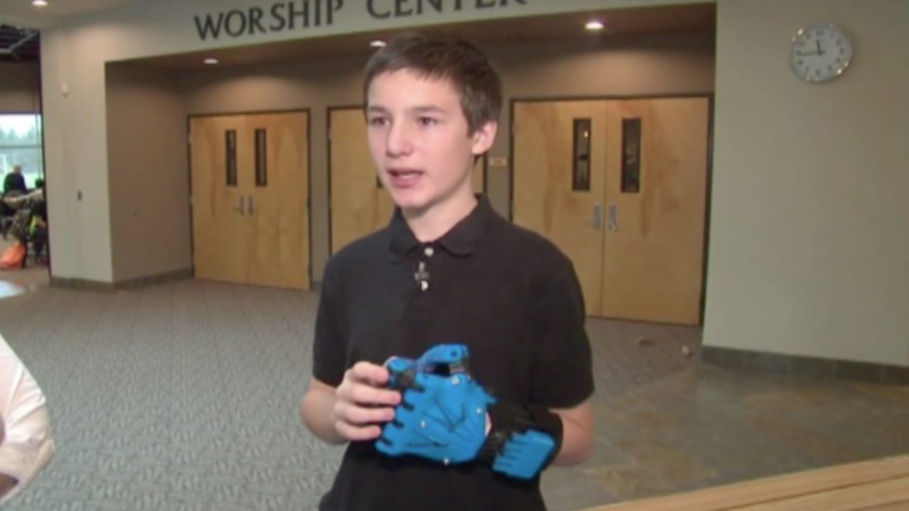 شاهد.. يد صناعية بطابعة ثلاثية الأبعاد لا تختلف كثيراً عن الطبيعية