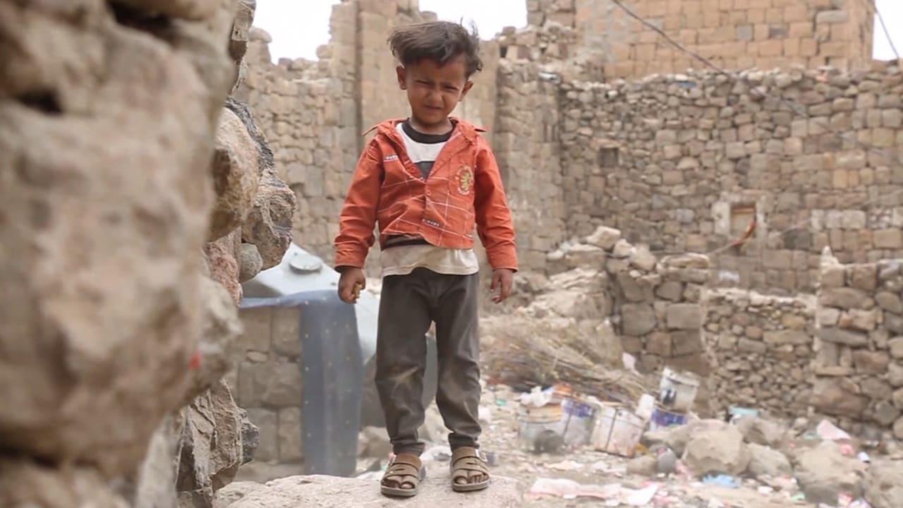 صراع اليمن يعرقل وصول لقاحات لمواجهة الكوليرا