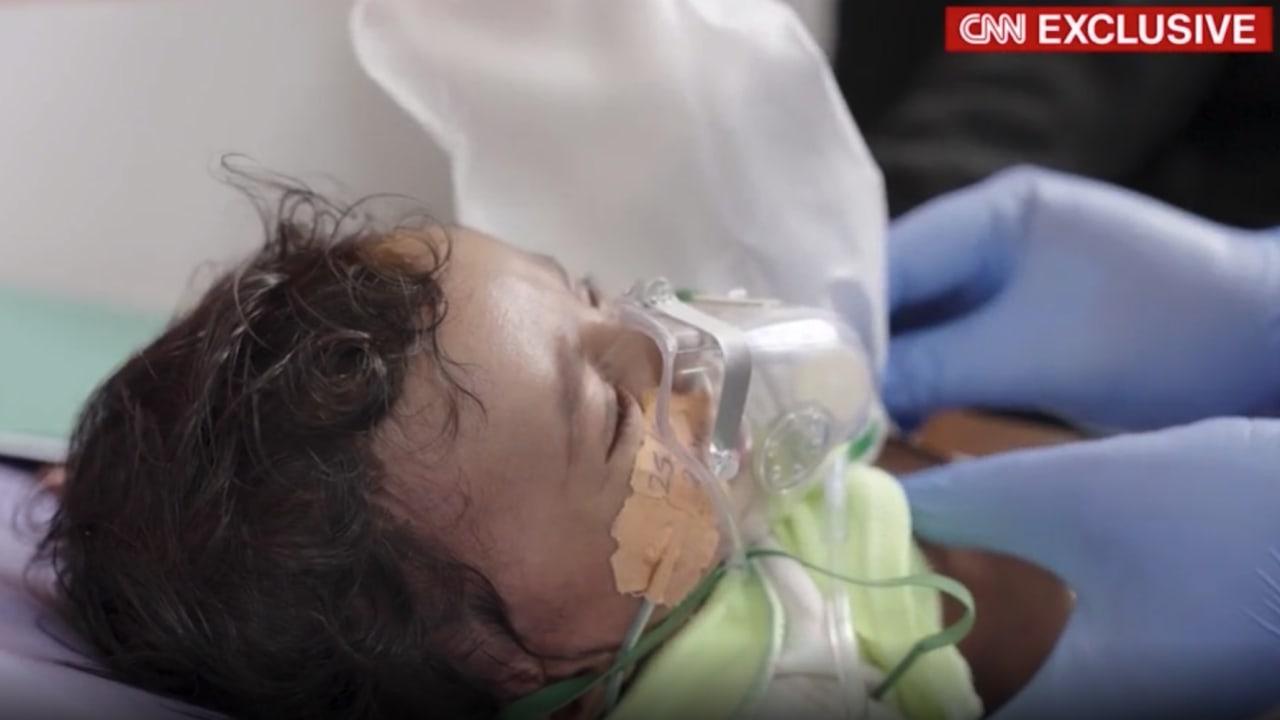 تحقيق حصري لـCNN.. المجاعة تضرب اليمن وسط صراع السعودية والحوثيين