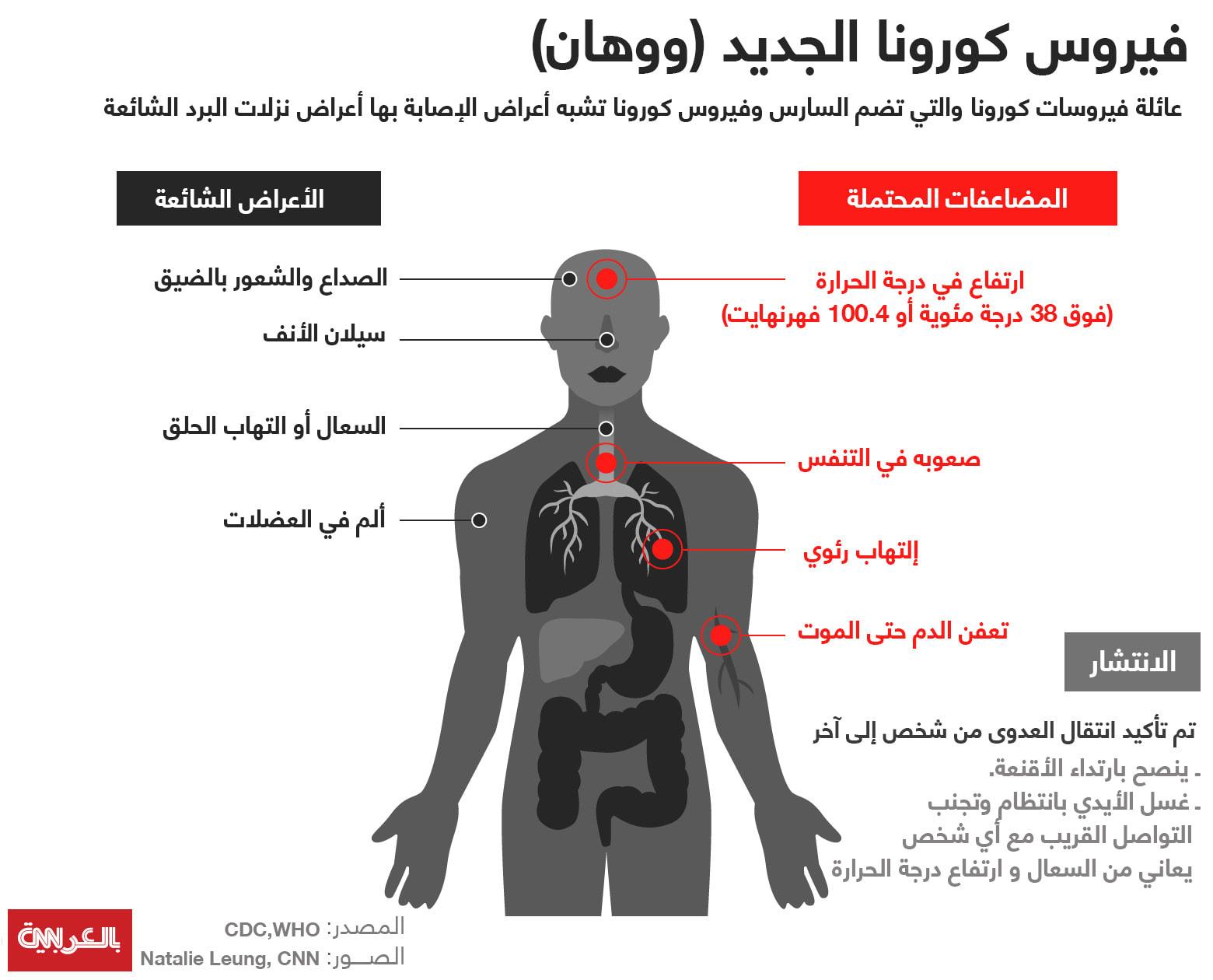 (أعراض الإصابة بفيروس كورونا الجديد (ووهان