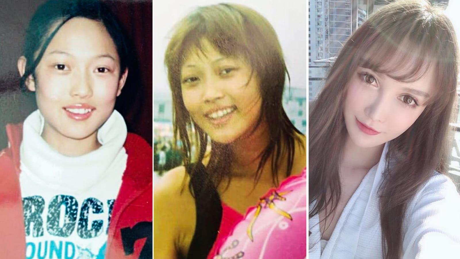تطبيقات جراحة التجميل في الصين