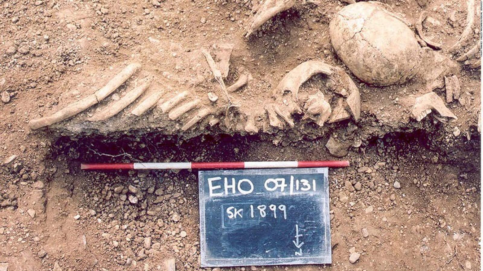 دراسة جديدة تكشف عن انتشار سلالات الجدري المتنوعة في عصر الفايكنج قبل ألف عام
