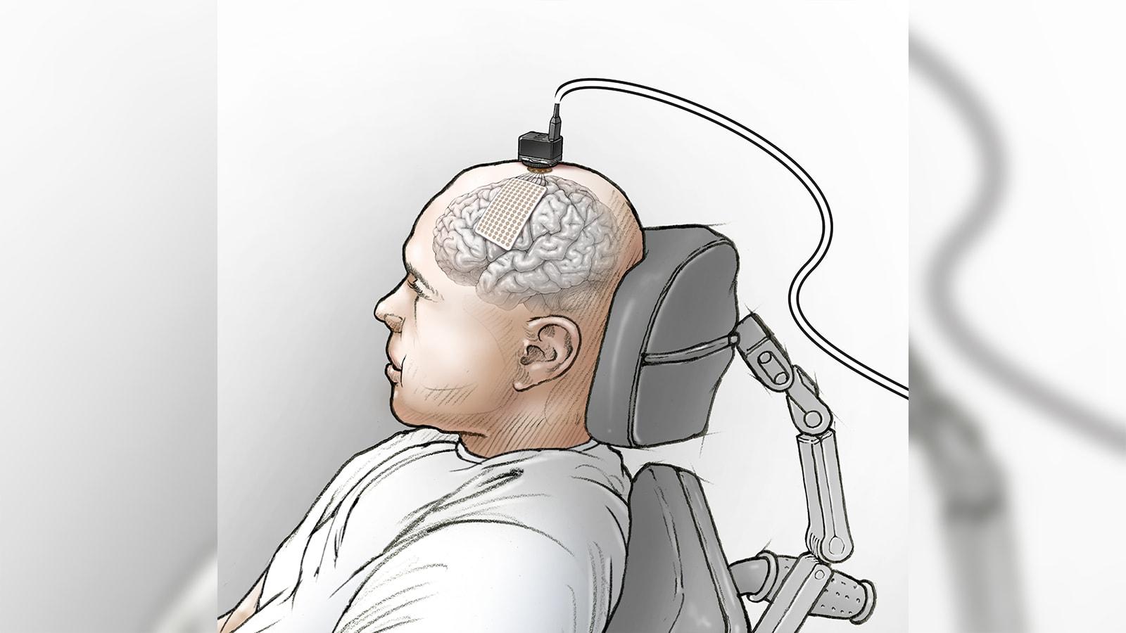 """غرسة في الدماغ تساعد رجلاً مشلولاً على """"التحدث"""" من خلال الكمبيوتر"""