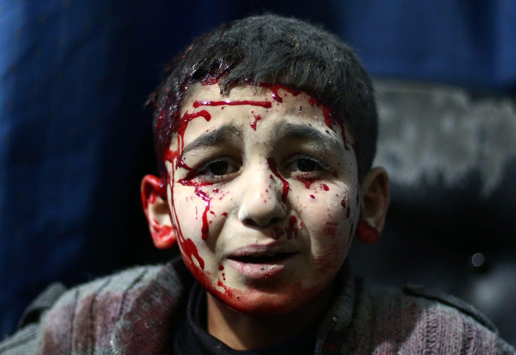 """الأمم المتحدة تتهم التحالف العربي بـ""""انتهاكات جسيمة"""" بحق الأطفال باليمن وتدرجه على قائمة سوداء إلى جانب الحوثيين والقاعدة"""
