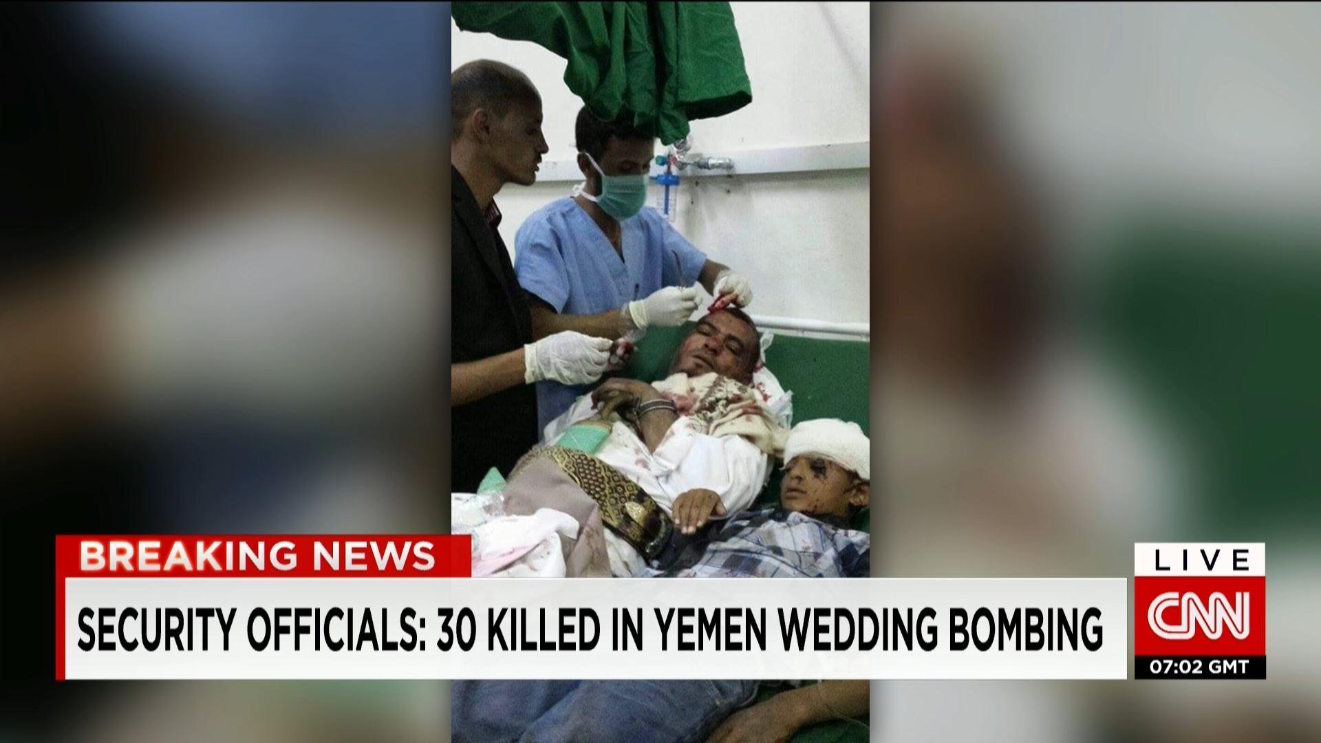 عسيري ينفي لـCNN تنفيذ عمليات بمنطقة شهدت مقتل يمنيين بحفل زفاف ويتهم الحوثيين بتخزين ذخائر بين المدنيين