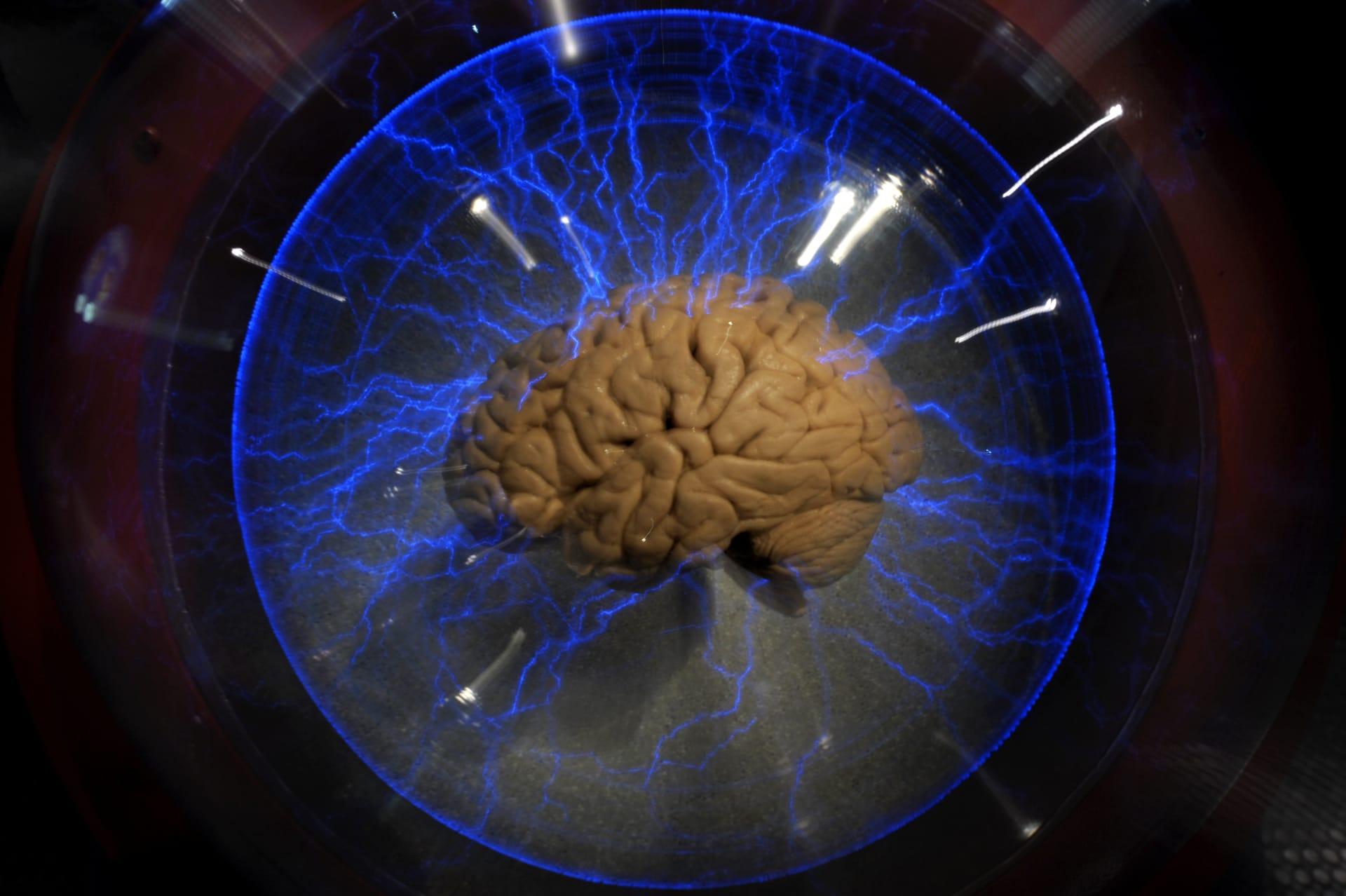 هل تمكن العلماء من التلاعب بدرجة إيمان الفرد واعتقاده الديني عبر التلاعب كهربائيا بالدماغ؟