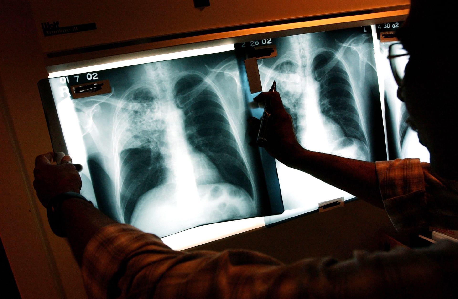 تعرّف إلى طرق الوقاية من السرطان الأكثر انتشاراً بين الرجال