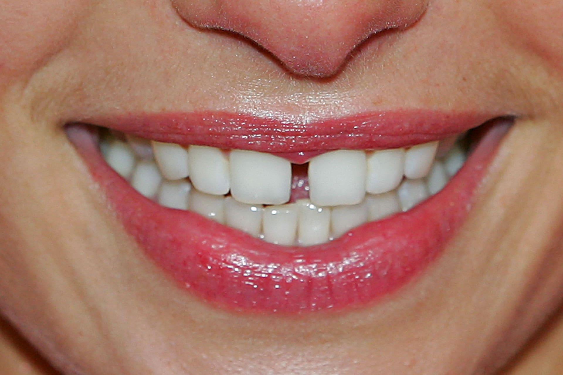 5 طرق طبيعية لتبييض أسنانك والتمتع بابتسامة مشرقة