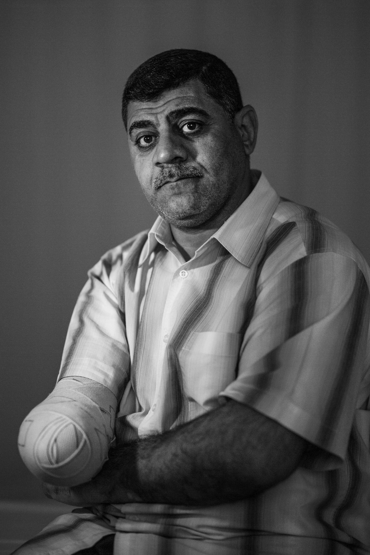 """بالصور..مستشفى بالأردن يجمع """"ضحايا"""" حروب الشرق الأوسط تحت سقف واحد"""