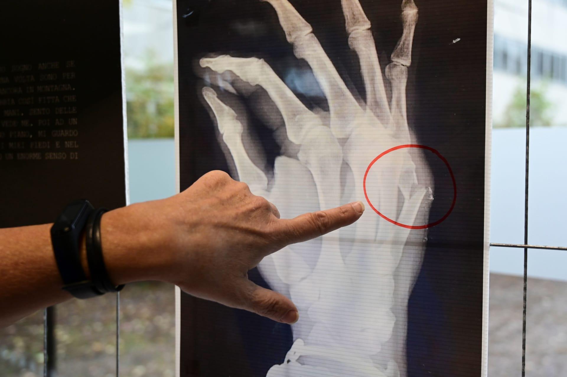 دراسة جديدة: النباتيون أكثر عرضة لكسور العظام