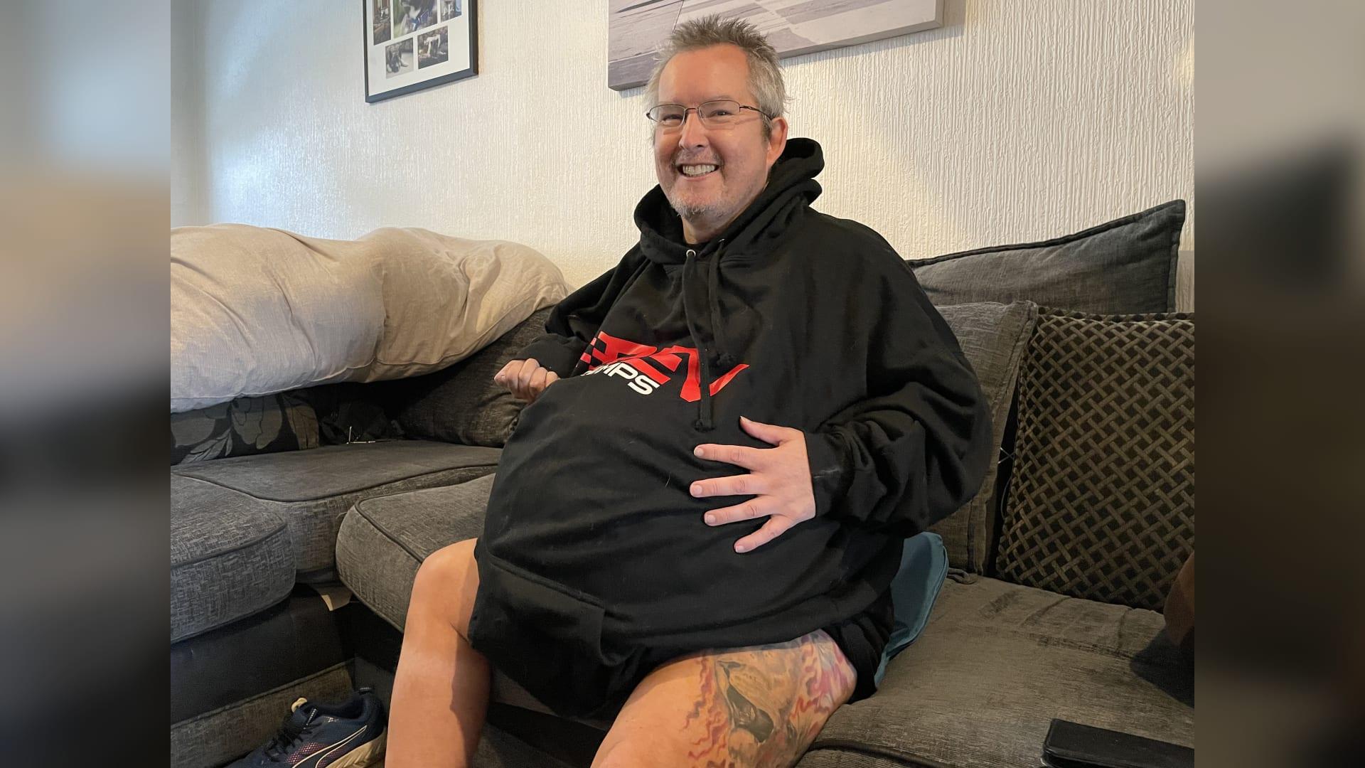 بلغ وزن كل منها 40 كيلوغرام.. رجل بكِلى عملاقة يخطط الخضوع لعملية جراحية لإزالة كليهما