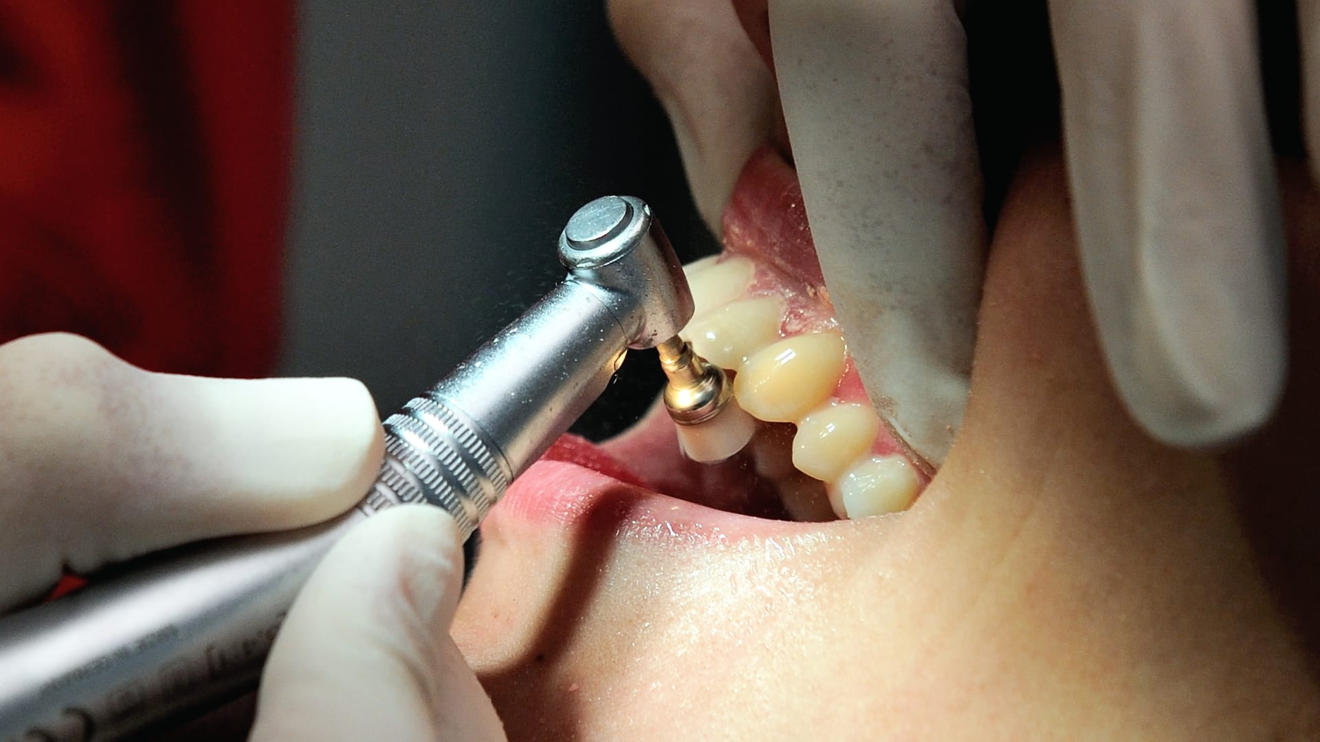 تلف الأسنان