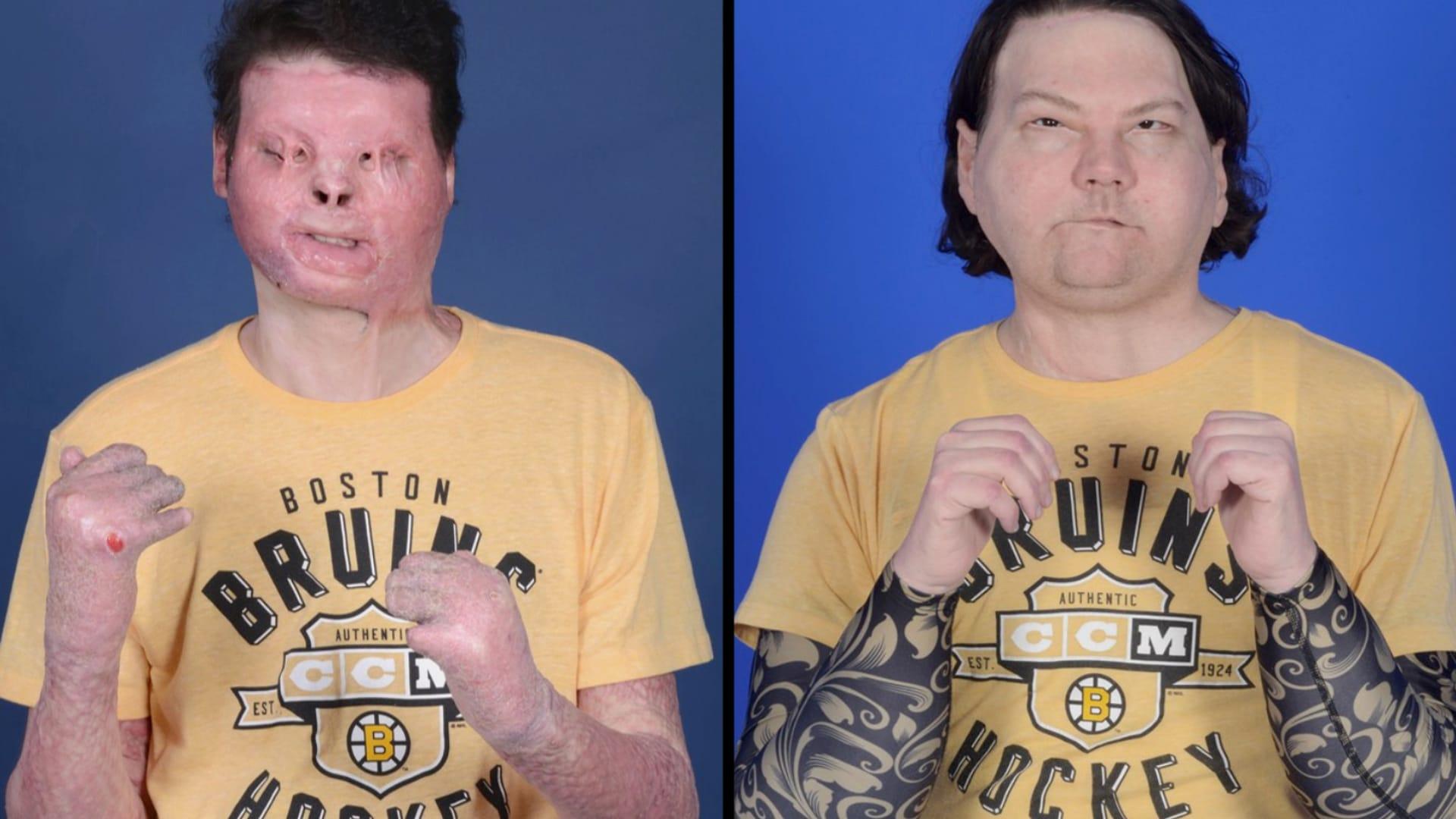 16 جراحا و23 ساعة.. نجاح عملية زراعة وجه ويدين لرجل