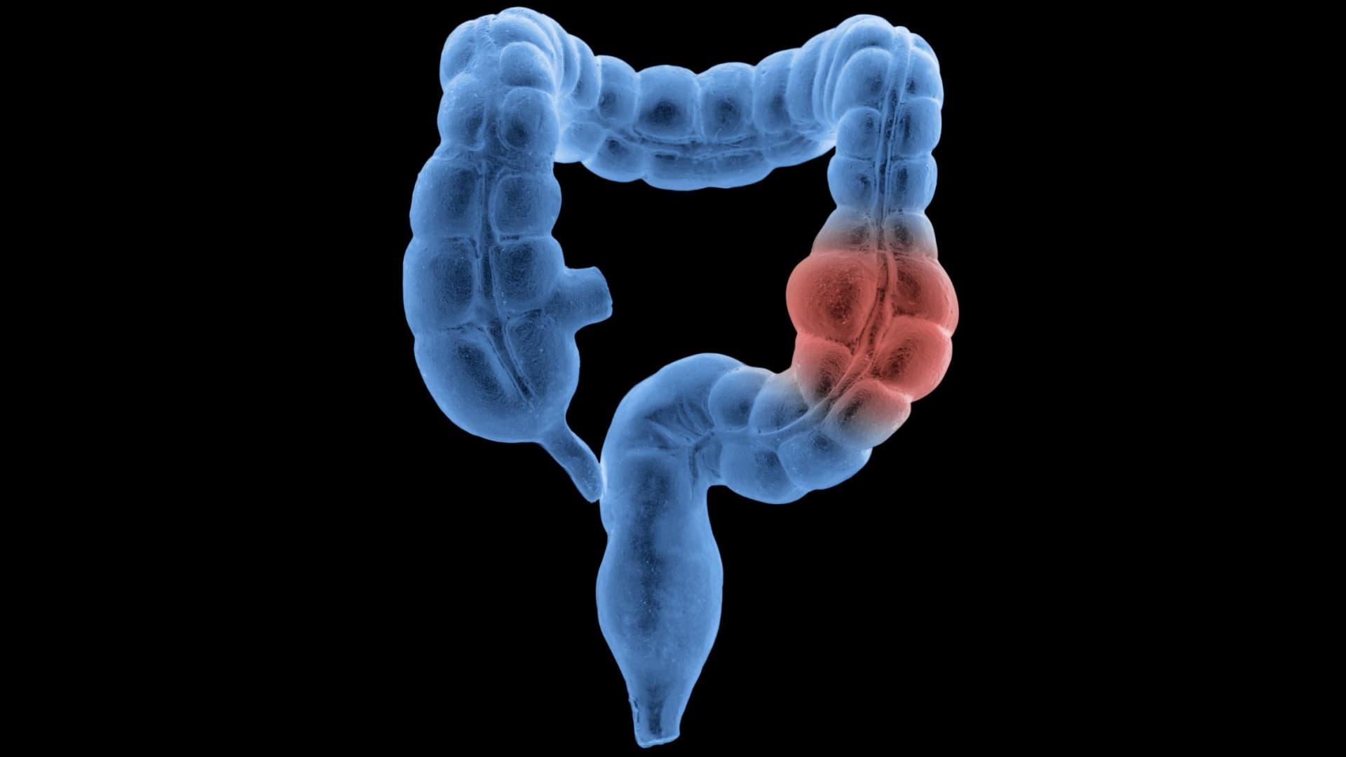 إرشادات جديدة لفحص سرطان القولون في عمر أصغر
