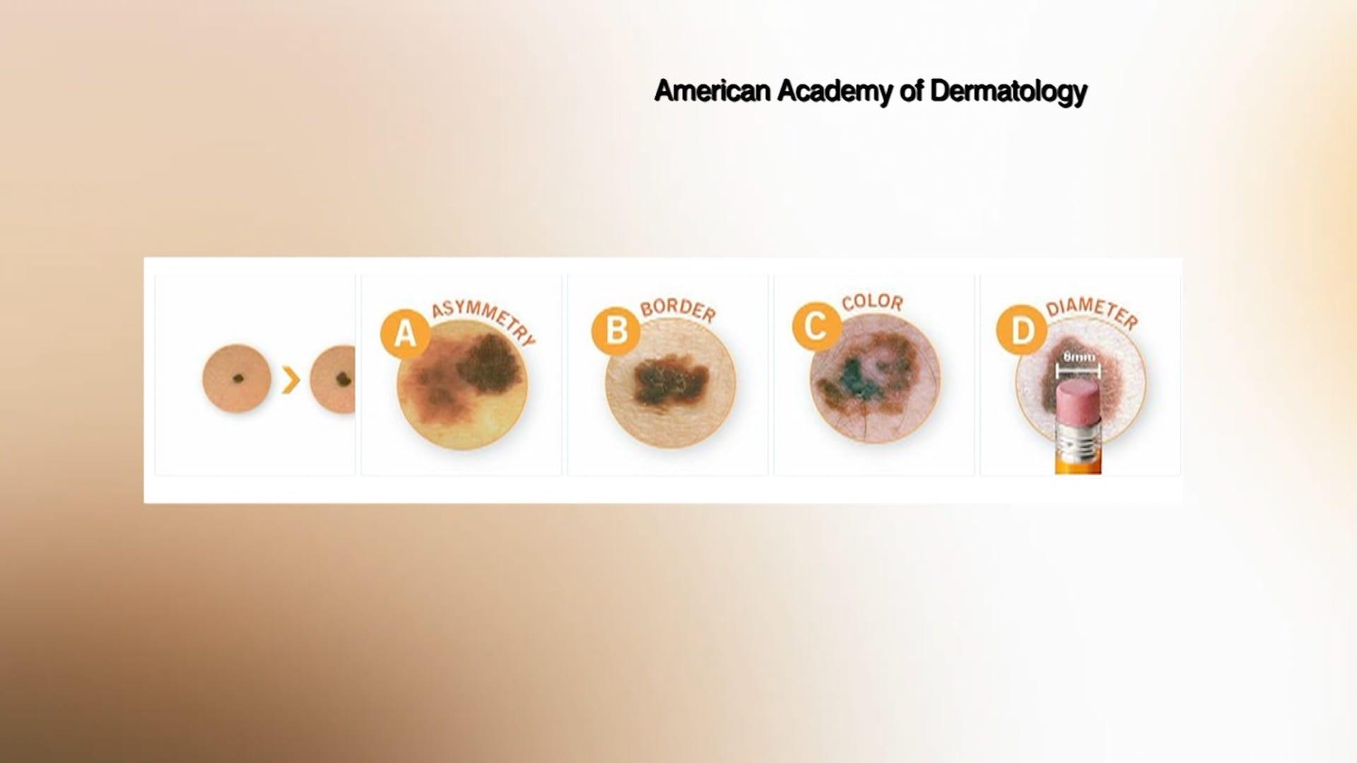تحذير للرجال فوق سن الخمسين: احترسوا من هذه المؤشرات لسرطان الجلد على جسمكم