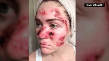 فتاة تصاب بسرطان الجلد وتنشر صورها للتحذير من مخاطر أجهزة تسمير البشرة