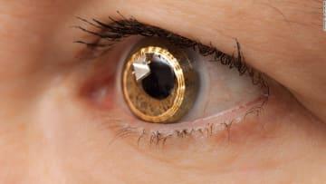 ابتكار علاج جديد قد يُنقذ 30 مليون شخص من العمى