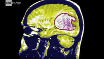 ما هو السرطان الأكثر خبثا الذي يستهدف الدماغ؟