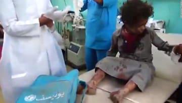 مقتل عشرات الأطفال في غارة على حافلة مدرسية باليمن