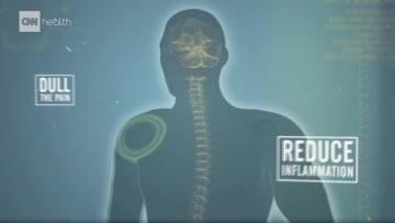 المسكنات تقلل من أفيونات الجسم الطبيعية..كيف تؤثر بالدماغ؟