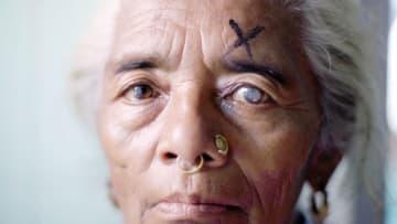 جرّاح يستعيد بصر أكثر من 130 ألف مكفوف في نيبال