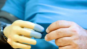أطراف اصطناعية تعيد حاسة اللمس للأشخاص المبتورة أطرافهم