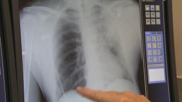 ماذا عليك ان تفعل عند الإصابة بالمرحلة 3 من سرطان الرئة؟
