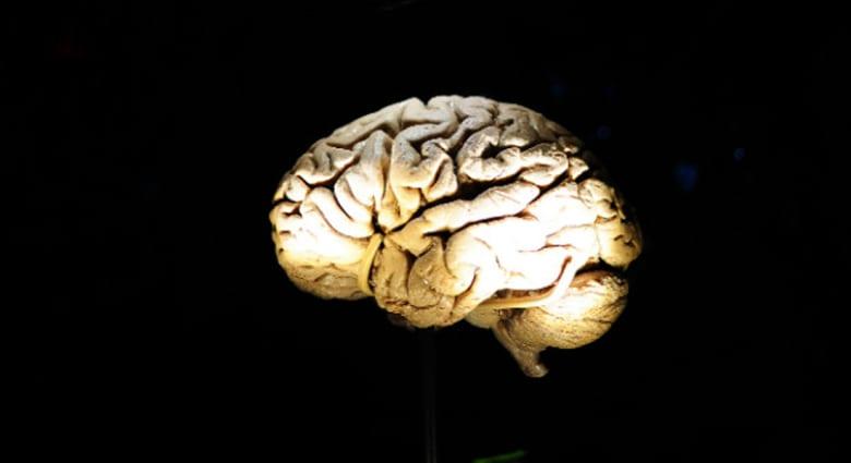 المزيد من مساوئ قلة النوم... قد يؤدي لانكماش المخ