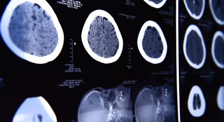 هل يصبح مسح الدماغ لمعرفة مستقبل الأشخاص أوثق من البراجين والعرافين؟