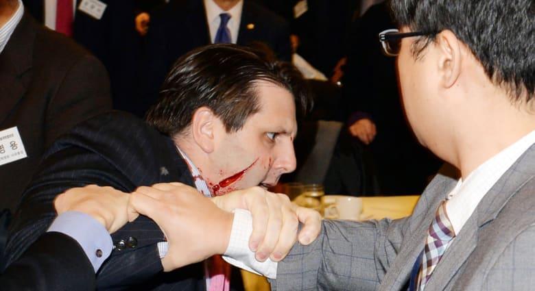 هجوم يستهدف السفير الأمريكي في سيؤول والأطباء يضعون 80 غرزة في وجهه