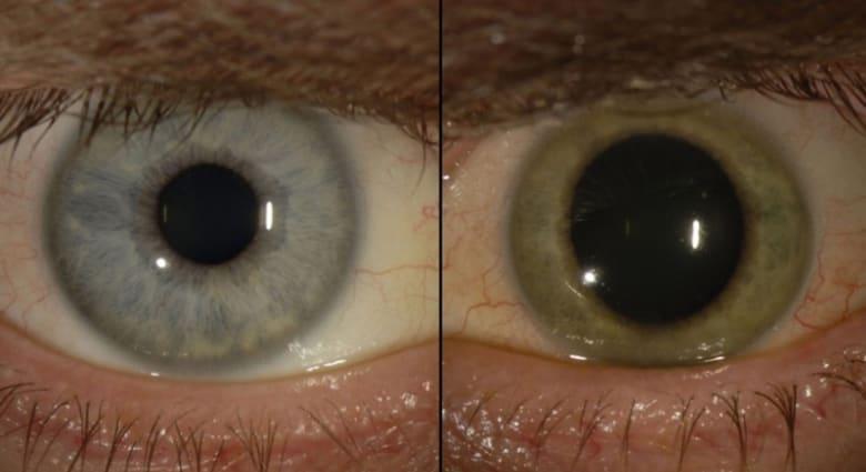 بعد تعافيه بشهور.. إيبولا داخل عيون طبيب أمريكي ويحول لونهما من الأزرق إلى الأخضر