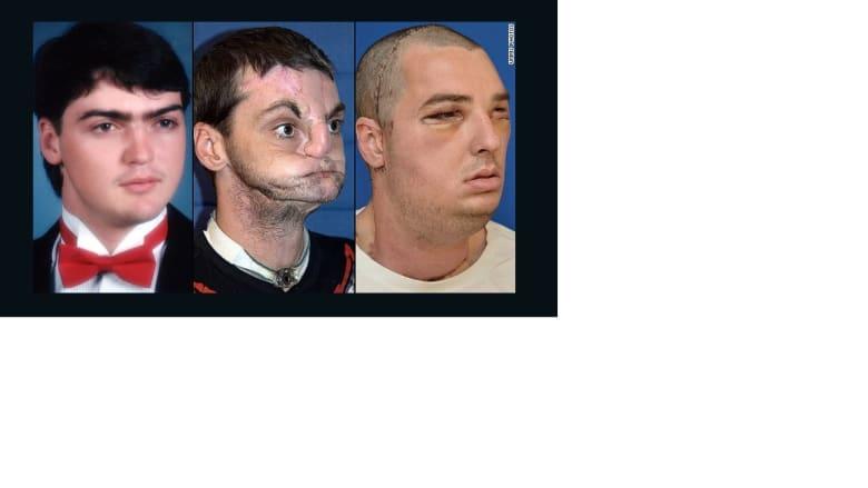 لقاء مؤثر بين أمريكية وشاب زرع له وجه شقيقها المتوفى بعد جراحة رائدة