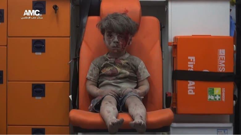 عمران.. عندما تتجسد مأساة الحرب السورية في وجه طفل