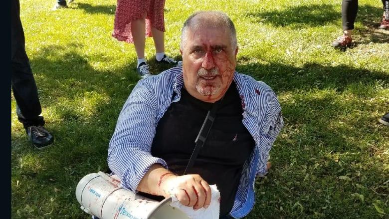 مصادر لـCNN: أمريكا تستدعي السفير التركي على خلفية اعتداء حراس أتراك بالضرب على متظاهرين في واشنطن