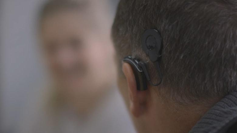 أبل تشارك في صناعة قوقعة اصطناعية لمساعدة ضعاف السمع