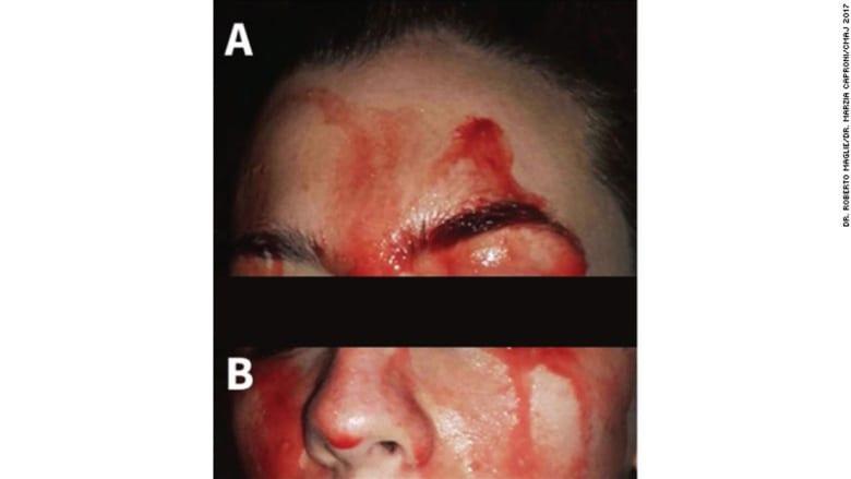 هذه المرأة تتعرق دماً من وجهها ويديها!