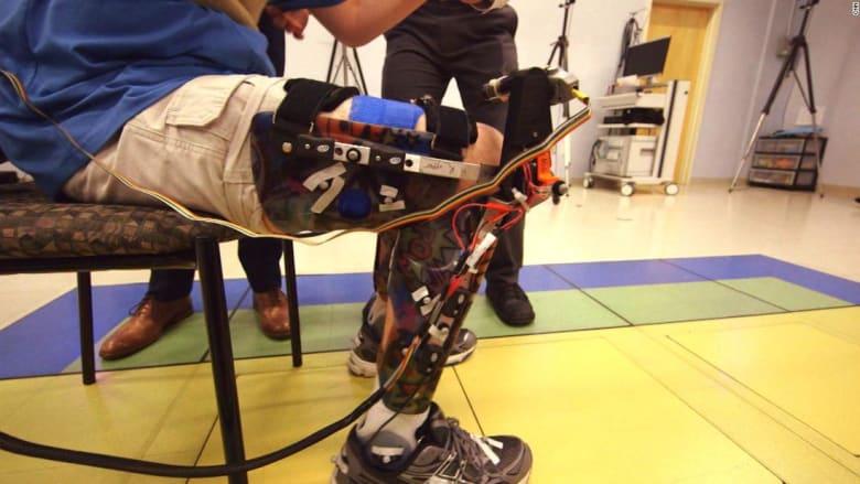 روبوت لمساعدة الأطفال المصابين بالشلل الدماغي على المشي