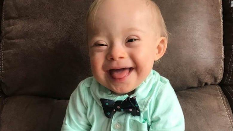 """أول طفل بمتلازمة """"داون"""" يفوز بمسابقة """"جاربر بيبي"""""""